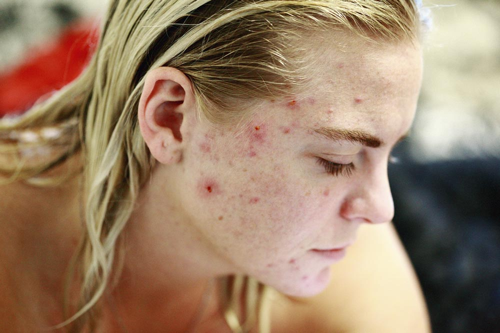 Woman with acne outbreak